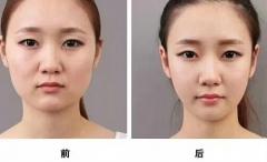 世界整骨大师『古藤格啓』古藤小顔术在华唯一教学