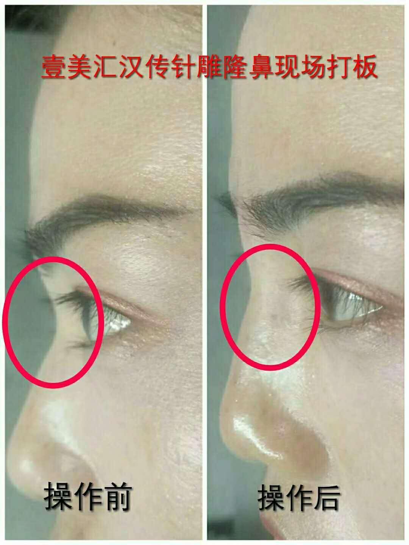 王瑞雪——汉传针雕绿色中医针灸祛皱技术