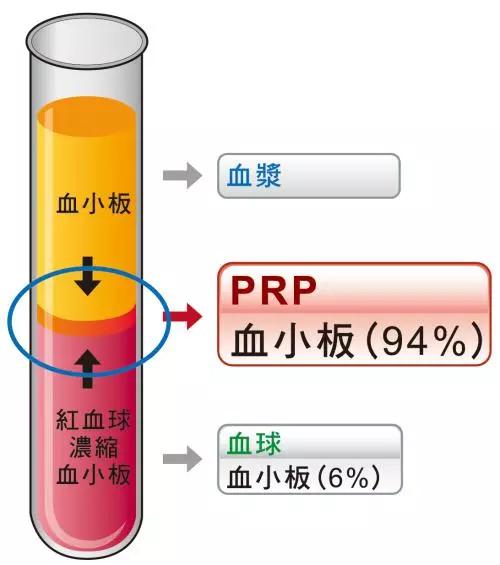 11月22日(北京)PRP技术骨病疼痛临床应用讲习班