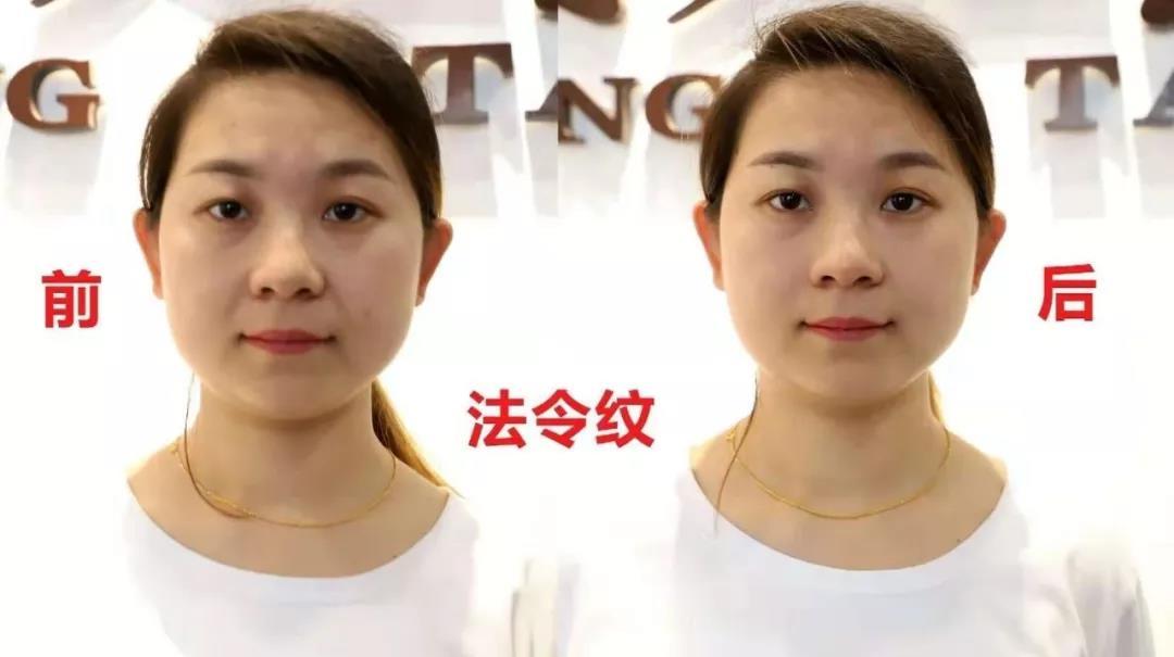 针灸美容祛皱、丰胸减肥、调理男女私密—汉传针雕