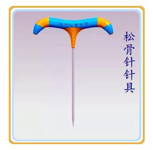 松骨针班(松骨针疗法+膝关节畸形一针复位技术)冯际良授课